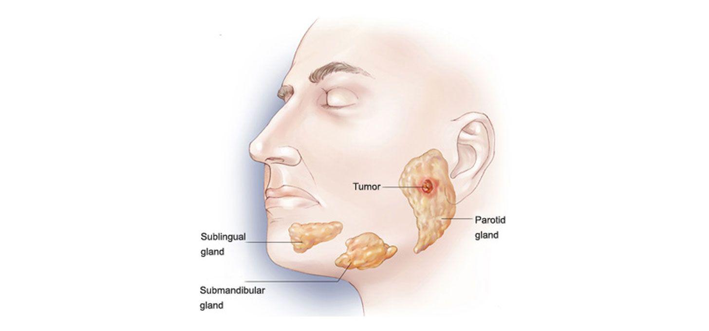 Parotid Surgery